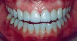 Healthy Gum Tissue Wake Dental Wellness Dentist In