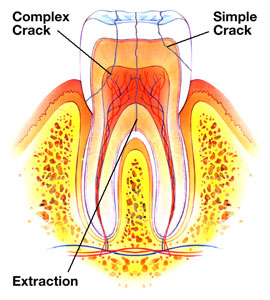 cracked tooth filling symptoms